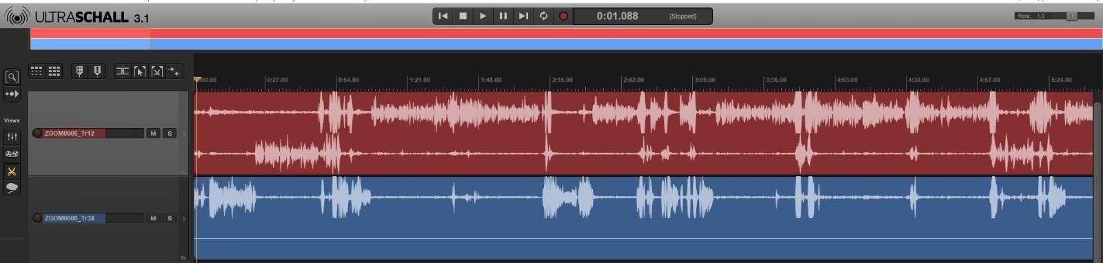 Ultraschall Grundanordnung der Tracks